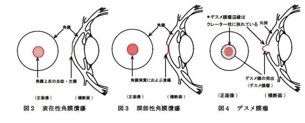 潰瘍性結膜炎 段階図